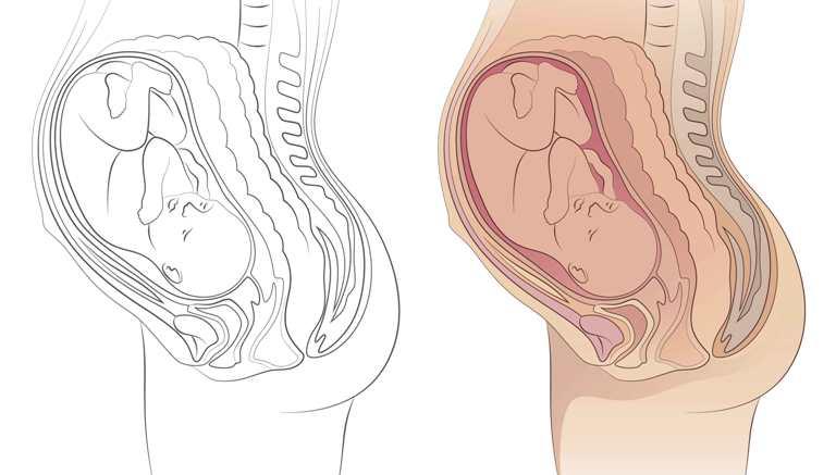 placenta anterioara