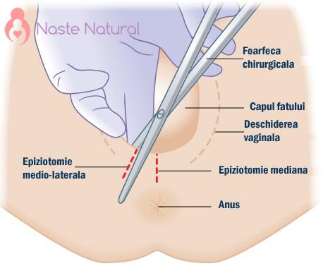 epiziotomie NN