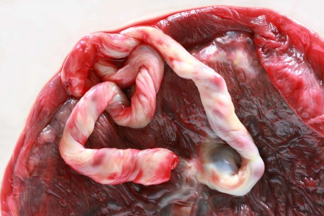 placenta imbatranita