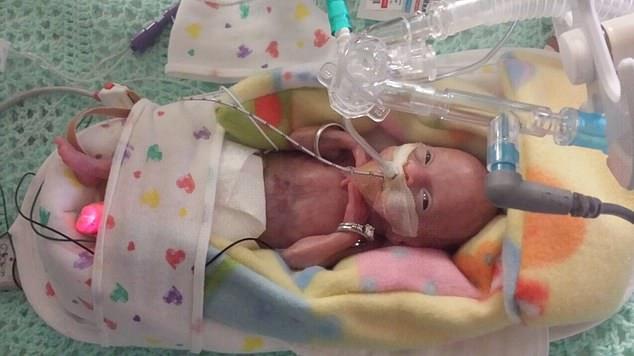 cel mai mic bebelus prematur nascut