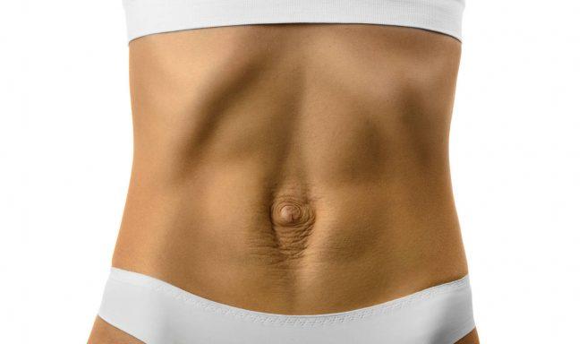 abdomen femeie cu diastaza abdominala