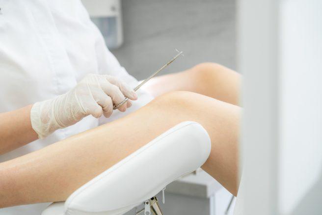 ginecolog care tine in mana un ac pentru a coase o pacienta