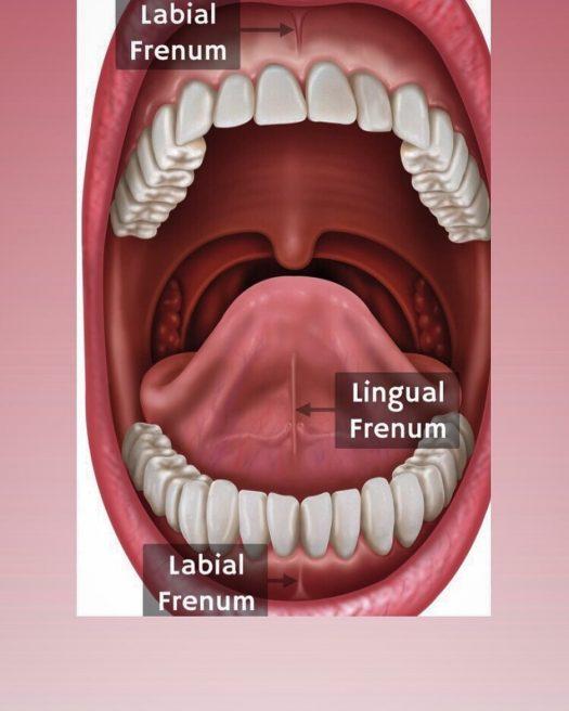 ilustratie cu frenul lingual