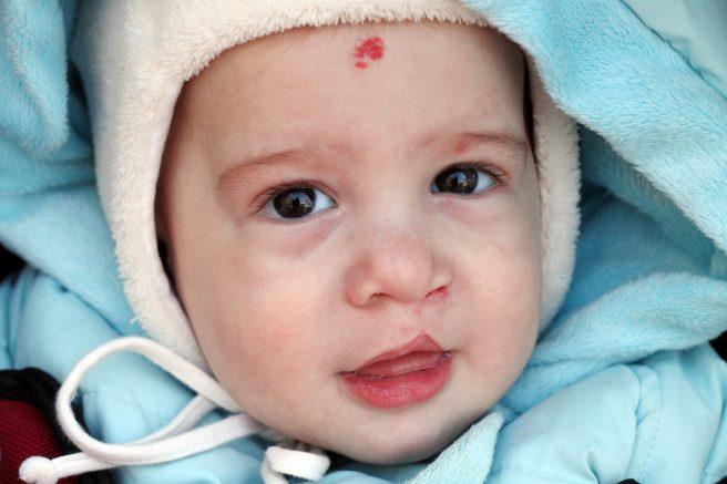 Bebeluș cu buza de iepure